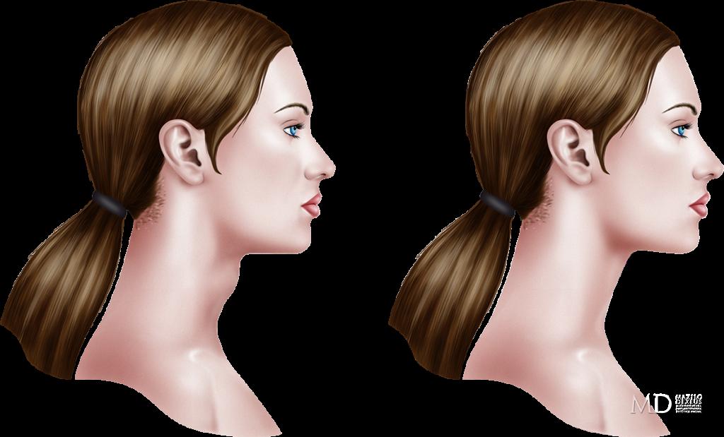 La eccema y la dermatitis del ungüento y la crema