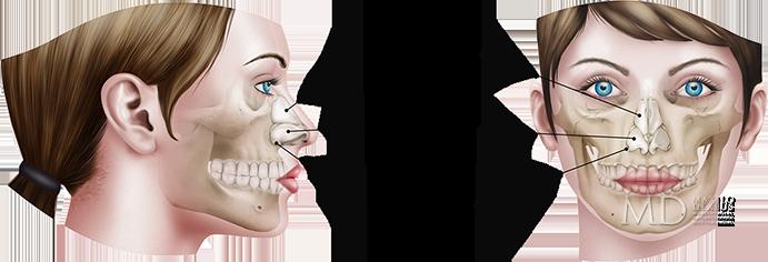 Conociendo la cirugía nasal - Maxilodexeus