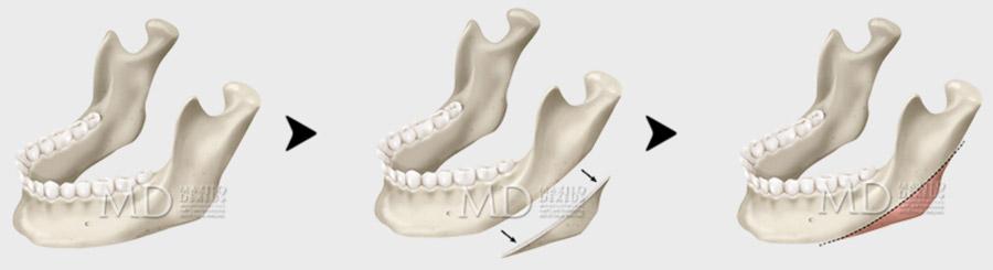 Reducción del ángulo mandibular