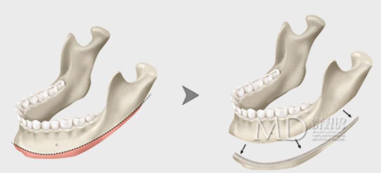 Reducción del contorno mandibular