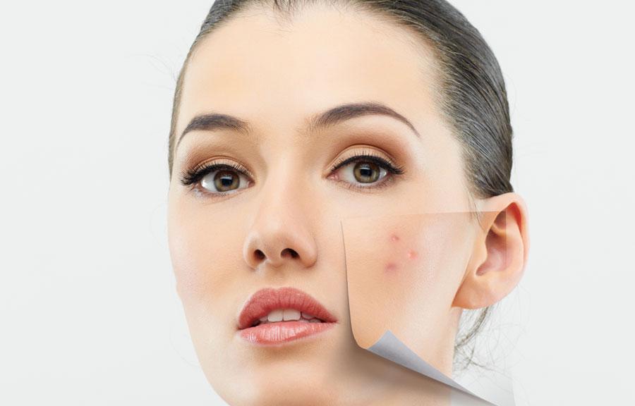 Quitar manchas faciales con láser