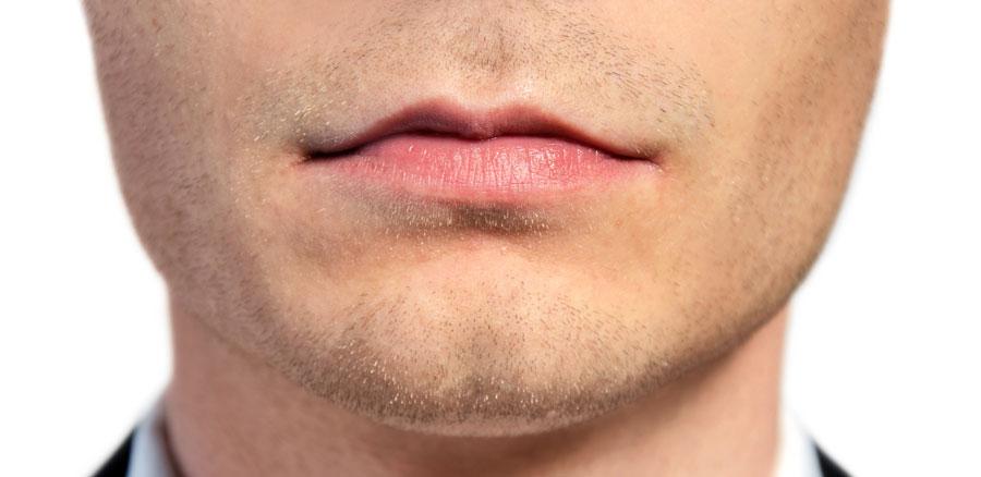 Labios caídos