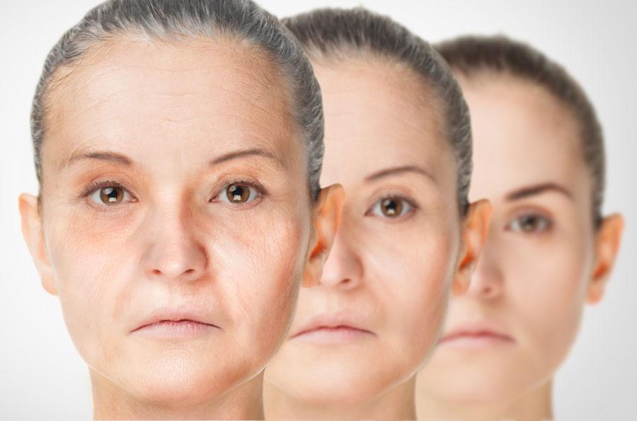 Estética facial en pacientes de más de 65 años