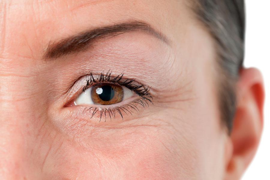 Cirugía de elevación de las cejas