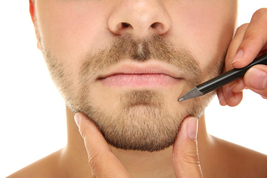 Cirugía de mentoplastia masculina