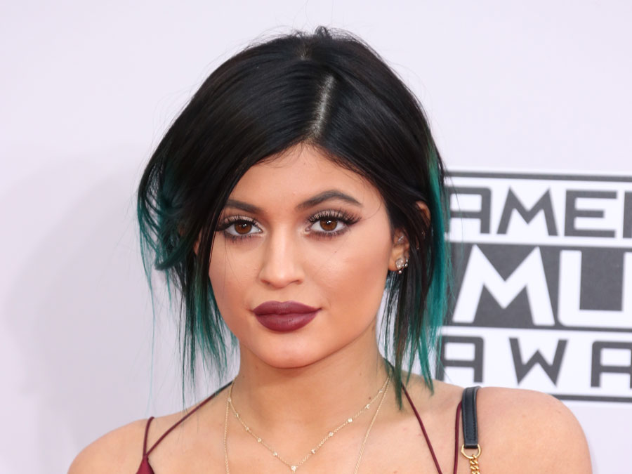 Kylie Jenner y Lip Lift