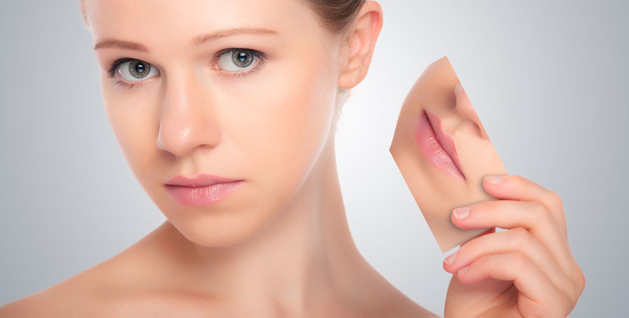 Lip Lift, cirugía de labios