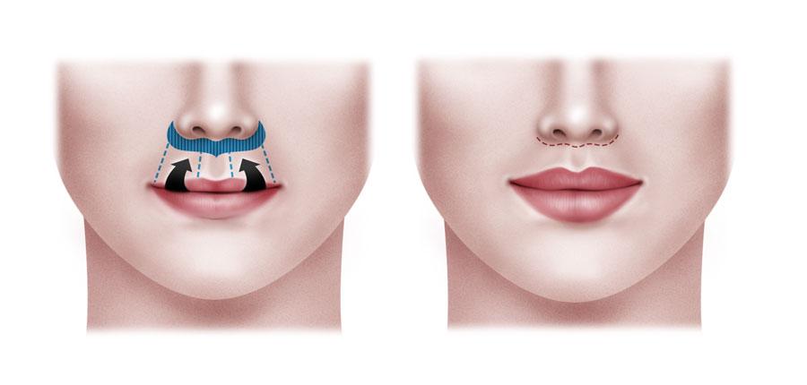 ¿Cómo se realizar Lip Lift?