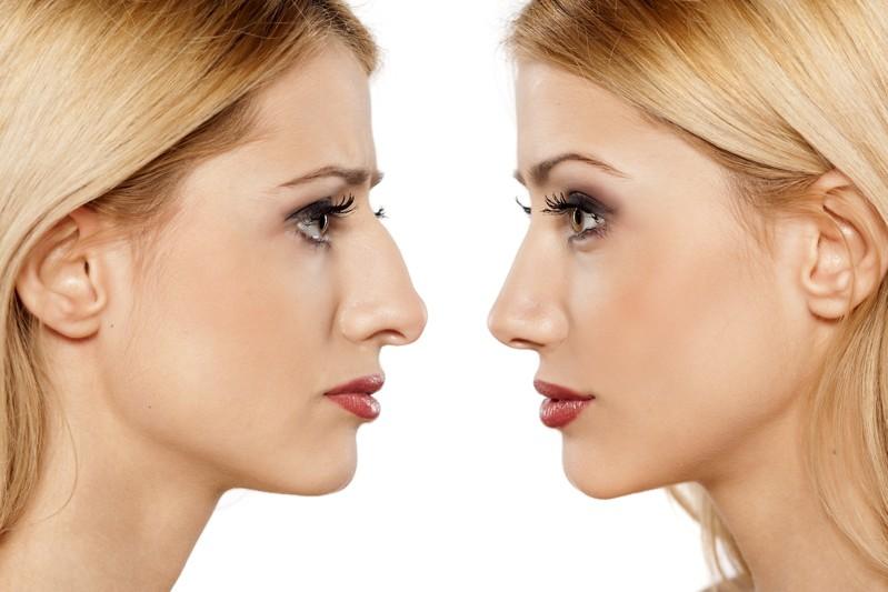 rinoplastia nariz grande